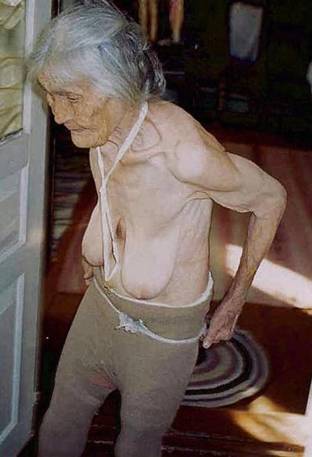 Granny Wrinkled Saggy Tits - 28 Pics  Xhamster-8290