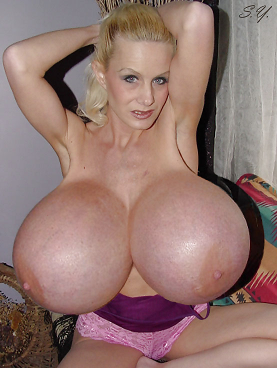 The biggest fake boobs in the world