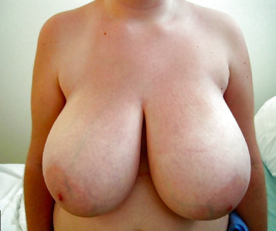 Breast lift areola reduction cost-3843