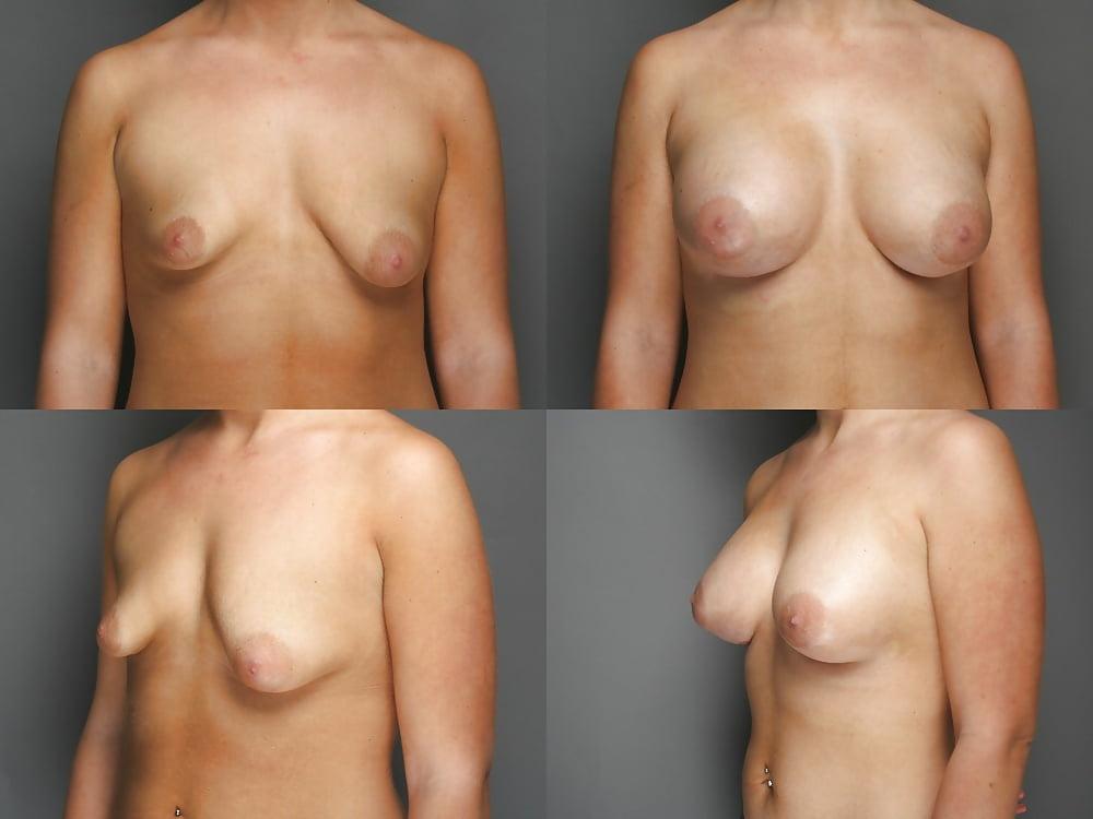 Lopsided tits pics