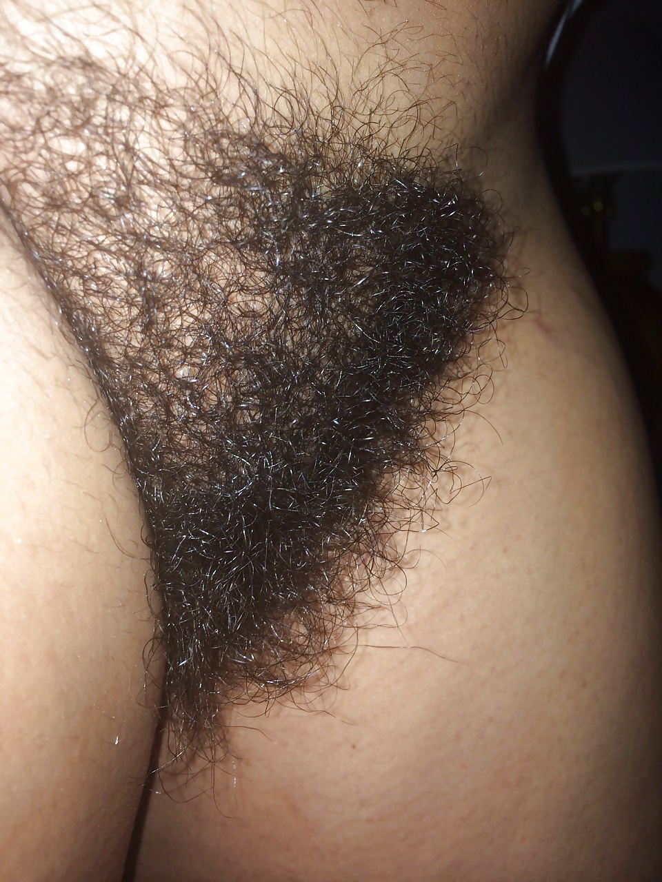 Teens stripping asian pubic hair transplant pictures pornstars porn pics