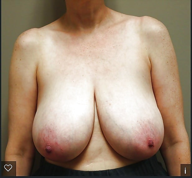 Breast lift areola reduction cost-6897