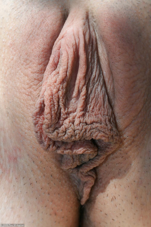 почему у женщины большие половые губы фото небольшого