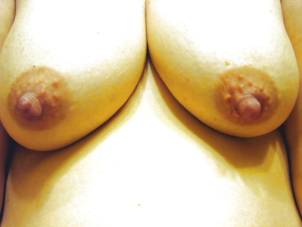 glands-of-montgomery-porn-girl
