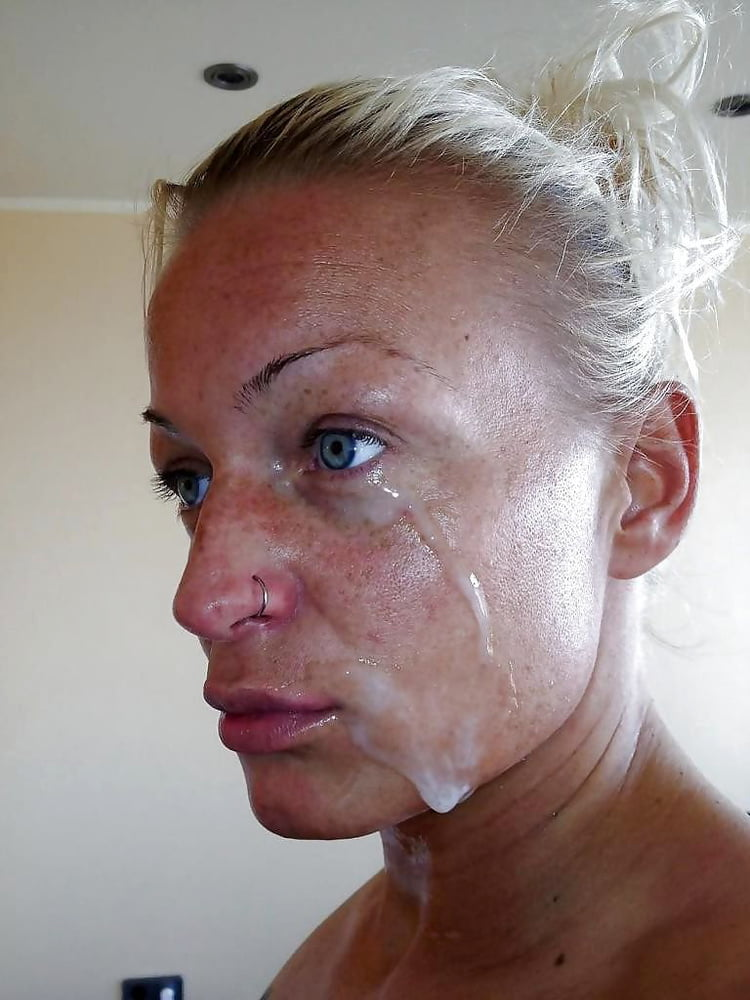 Antisperm antibodies treatment female