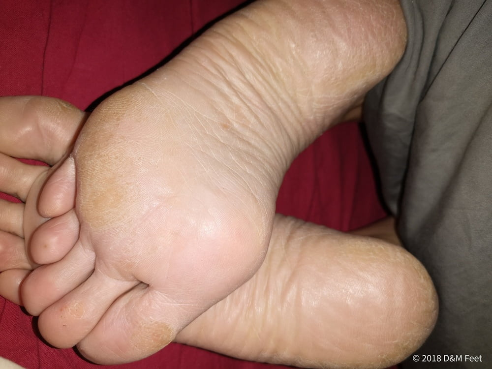 Mikora    reccomended chubby amateur cuckold