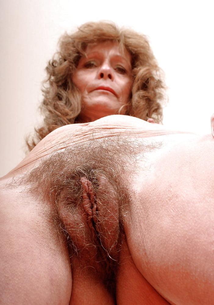 Older Woman With Severe Vulvar Pruritus