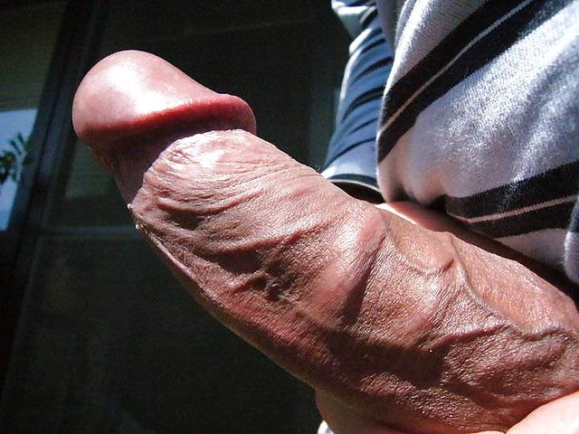 Penile mondor's disease