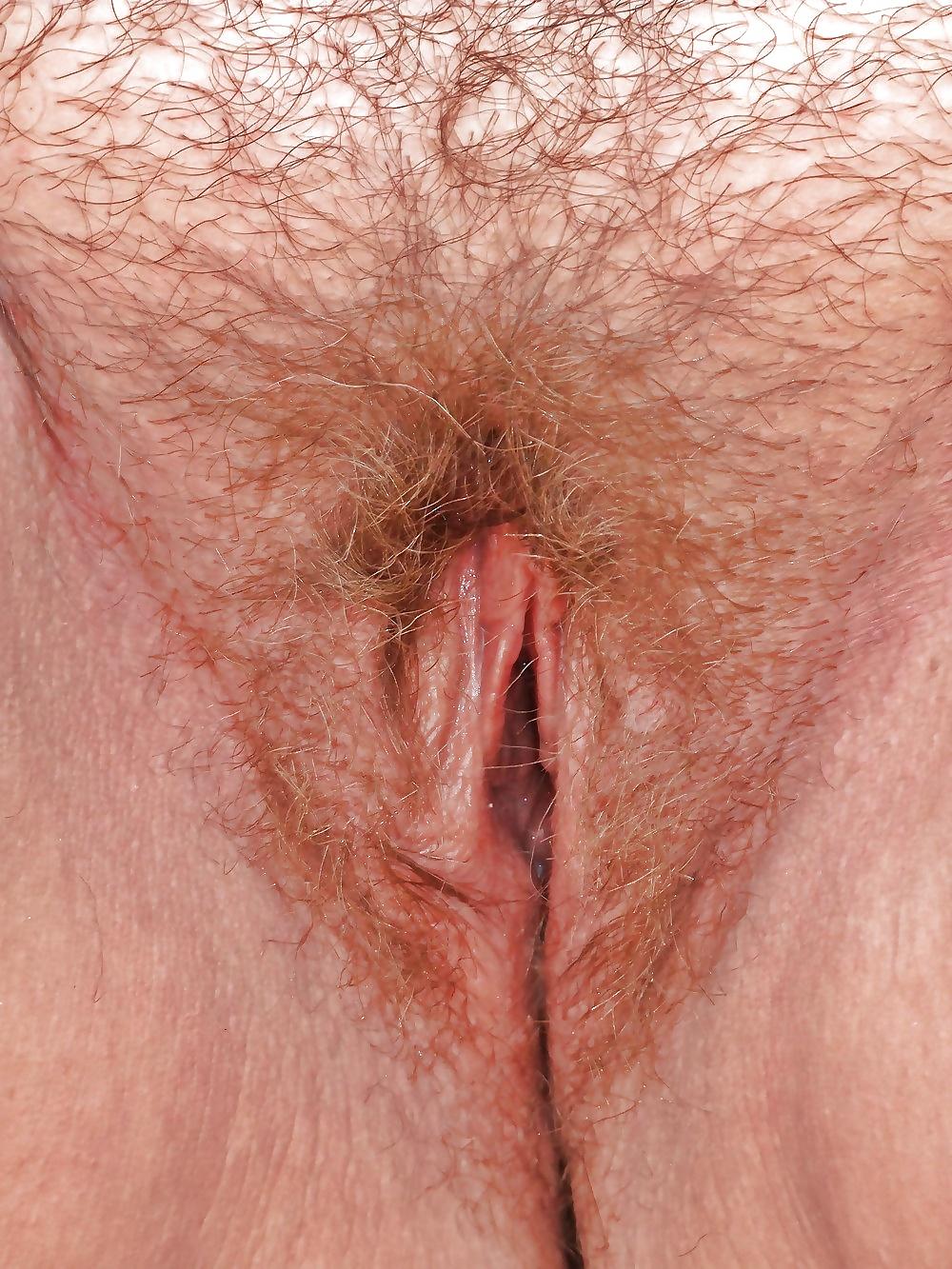 Vulva photo archive