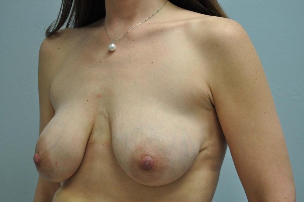 Radical breast reduction