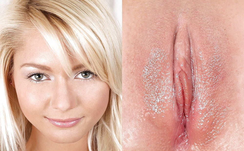 Woman who thought small bump on her vagina was ingrown hair diagnosed with rare cancer