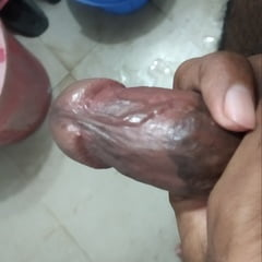 Upper Side Of My Dick