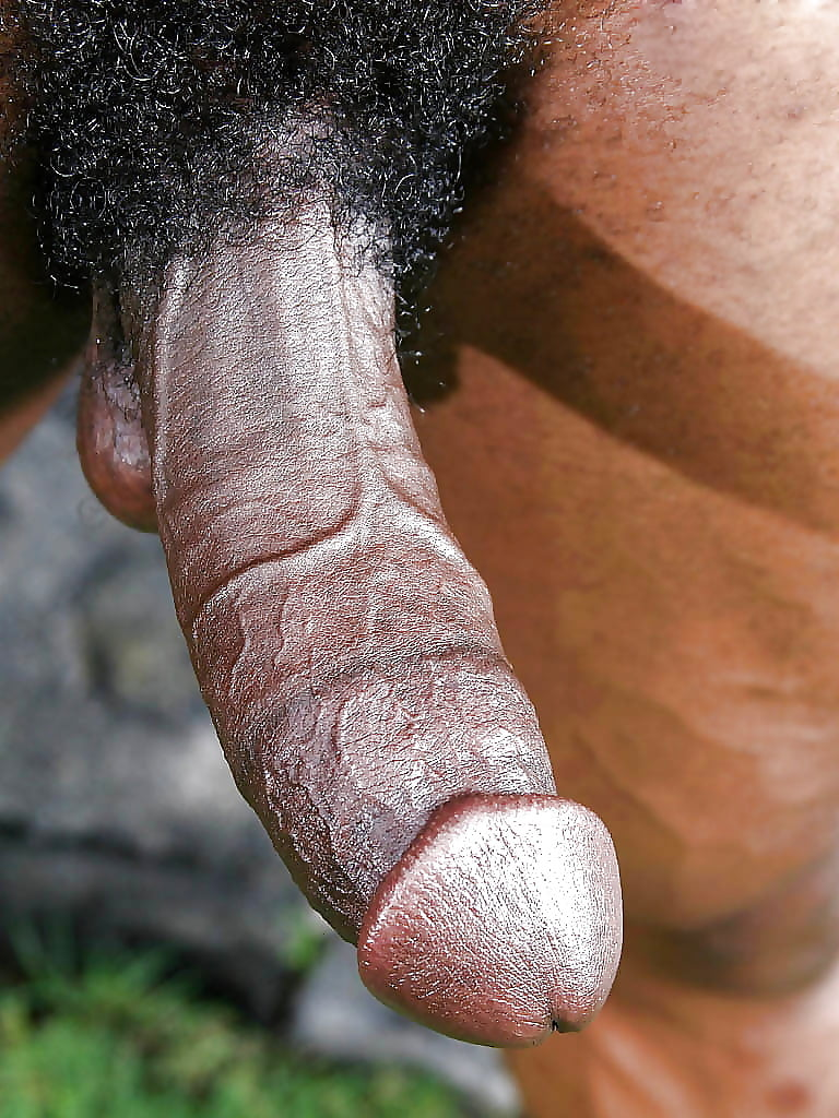 Hard, white skin on my penis