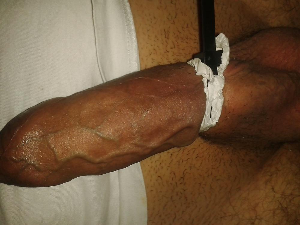 Cutaneous penile lesions